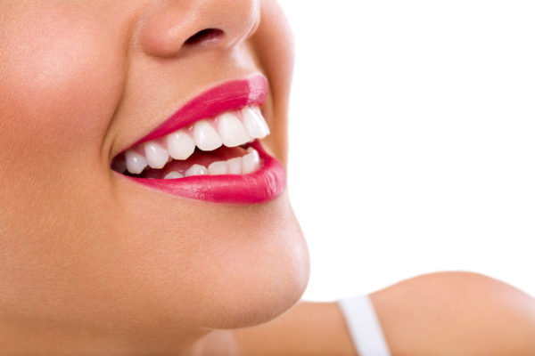 veneers to hide imperfections