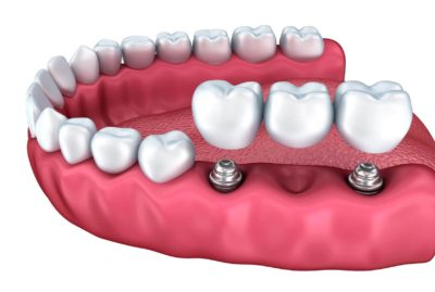 dental implants, oral surgeon