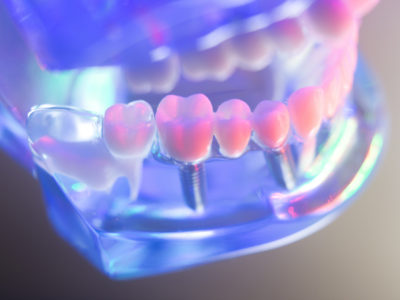 How much does dental implants cost